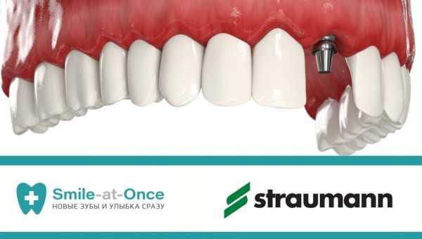 Зубные импланты симферополь